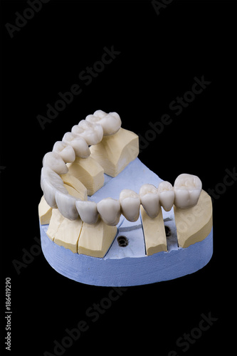 Fotografie, Obraz  ceramic teeth on the model