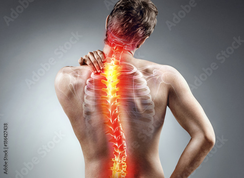 Cuadros en Lienzo Young man holding his neck in pain. Medical concept.