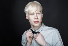 Albino Man White Skin