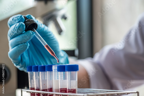 Fotografie, Obraz  scientist or doctor dropping a blood into blood test tube in rack , research  co