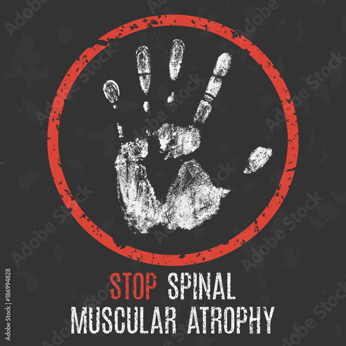 Photo The medical diagnosis. Stop spinal muscular atrophy.
