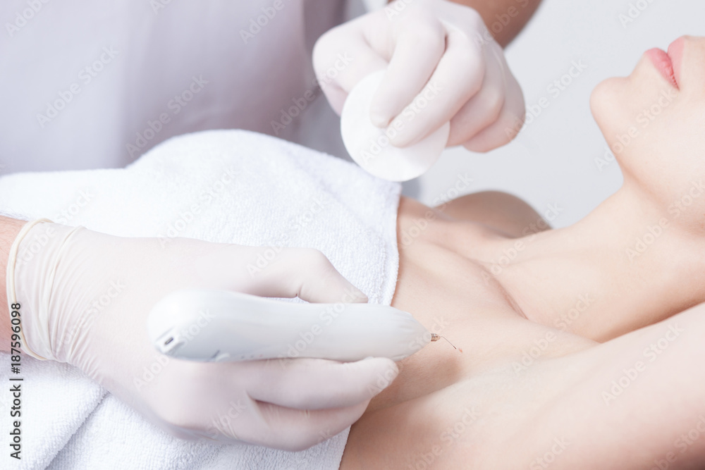 Fototapeta woman during wart removal on skin