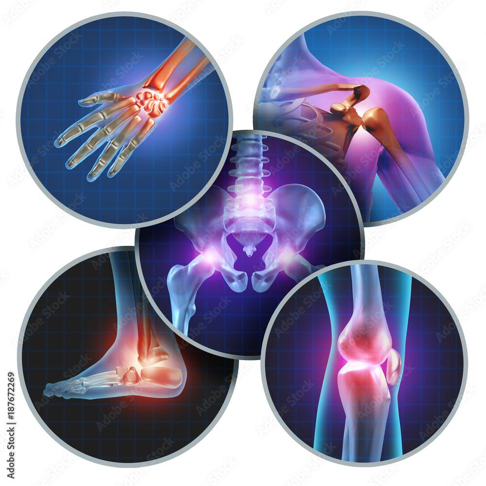 Fototapety, obrazy: Human Painful Joints