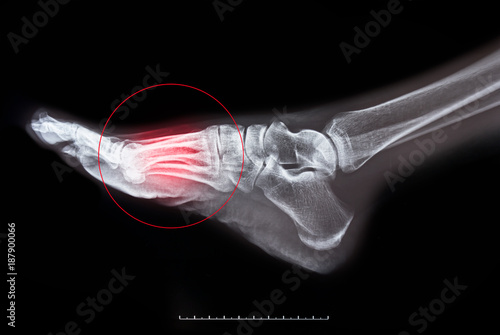 Photo x-ray of foot on black background