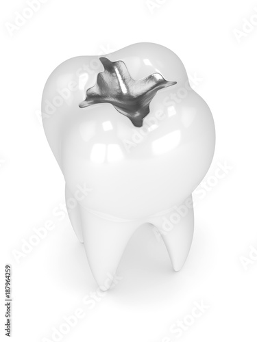Fotografija  3d render of tooth with dental amalgam filling