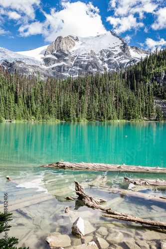 Turquoise Waters of Joffre Lake
