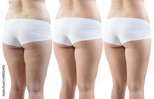 Fotografie, Obraz Female buttocks before and after sport and treatment.