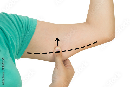 Foto  Closed up of woman grabbing skin on upper arm with the drawing arrows - cellulit