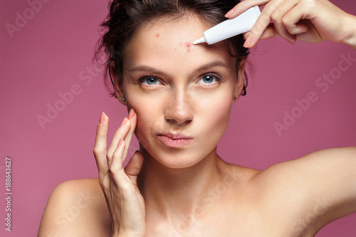 Photo Scowling girl pointing at her acne and applying treatment cream