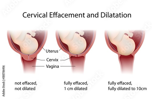 Valokuva  Cervical Effacement and Dilatation