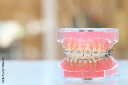 Fotografia  歯科矯正模型