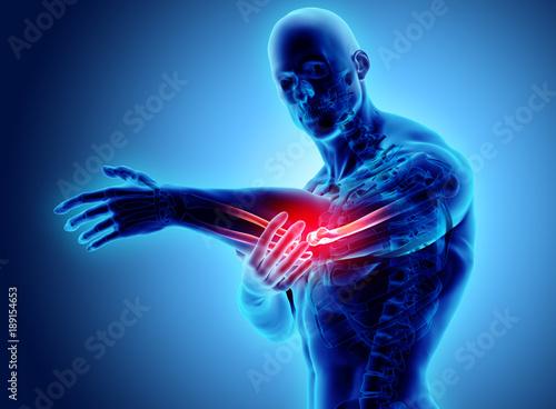 Fotografia  3d illustration of human elbow injury.