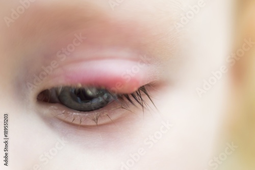 Photo Illness person eye with sty and pus looking into the camera