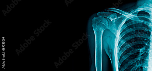Fotografie, Tablou  banner x-ray shoulder