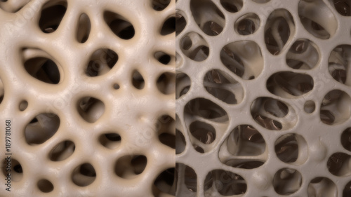 Fotografía  3D CG rendered image of healthy / osteoporosis bone micro structure