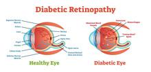 Diabetic Retinopathy Vector Illustration Diagram, Anatomical Scheme.