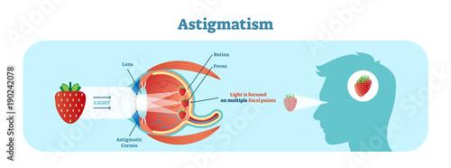 Photo Astigmatism vector illustration diagram, anatomical scheme.