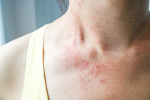 Young Woman Has Skin Rash Itch...