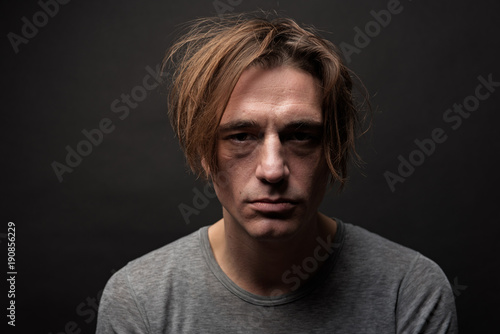 Portrait of exhausted sad guy with shaggy hair standing and looking at camera with apathy Canvas Print
