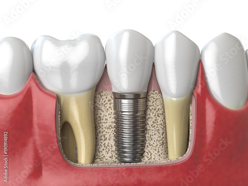Fotografie, Obraz  Anatomy of healthy teeth and tooth dental implant in human dentura