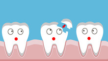 Tooth Fracture, Filling, Teeth...