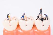 Miniature People And Dental Mo...