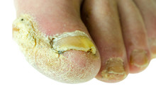 Extreme Bad Foot Skin Bacterial Fungal Infection With Damaged Nail Close Up Partially Isolated On White Background
