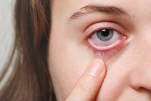Medicine, Health Care And Eyesight Concept. Unrecognizable Female Shows Her Inflated Red Eye With Blood Capillary, Has Conjuctivitis. Woman With Injured Eye