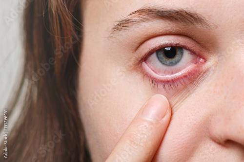 Photo Medicine, health care and eyesight concept