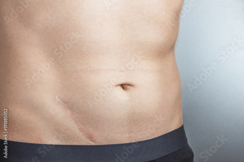 Foto  Young man with scar after surgery on abdomen, removal of appendicitis