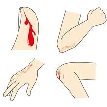 手足の擦り傷・切り傷