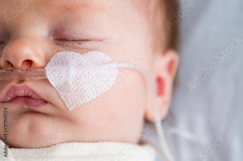 Fotografia  Newborn baby in hospital weakened with bronchitis is getting oxygen via nasal pr