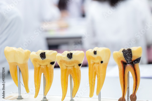 Photo Tooth model for education in laboratory.