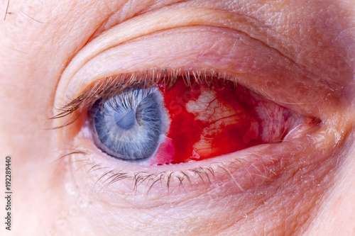 Bloodshot eye. Close-up macro image of a very red bloody eyeball. Wallpaper Mural