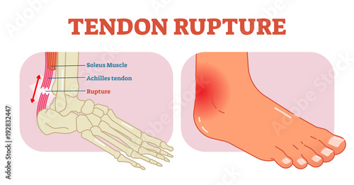 Tendon rupture anatomical example, vector illustration diagram, educational medical scheme Canvas Print