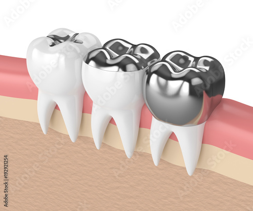 Fényképezés  3d render of teeth with different types of dental amalgam filling