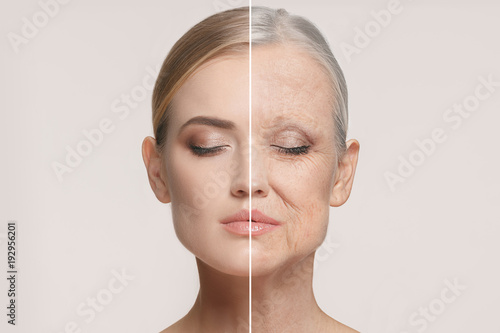Obraz Comparison. Portrait of beautiful woman with problem and clean skin, aging and youth concept, beauty treatment - fototapety do salonu