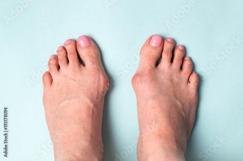 Photo  Bone on the foot. Hallux valgus disease
