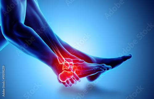 Ankle painful - skeleton x-ray. Wallpaper Mural