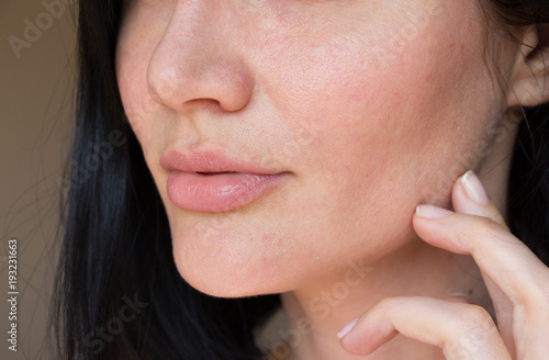 Fotografia problem skin of the face. acne on the face. pores on the face