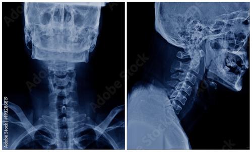 cervical spine spondylosis, x-ray c-spine show degenerative change ...