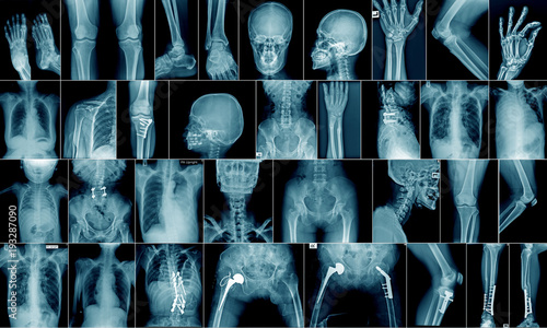 Fotografía  high quality x-ray collection body part and fracture area