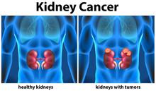 Diagram Showing Kidney Cancer ...