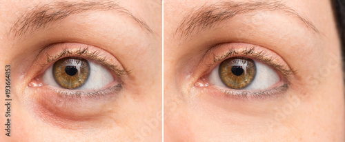 Puffy eye before and after beauty treatment Canvas Print