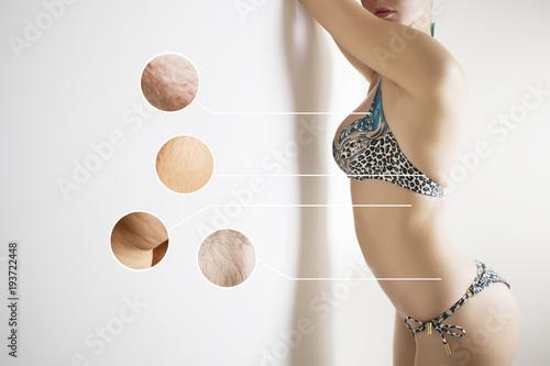Fotografie, Obraz  problem zones of female body