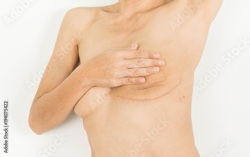 Tuinposter Akt Breast Cancer Surgery in woman