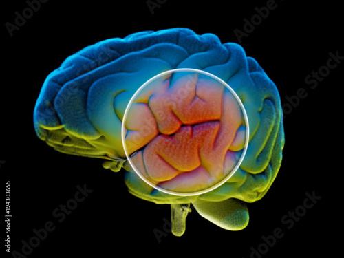 Photo Cervello, malattie degenerative, Parkinson, corpo umano, organo