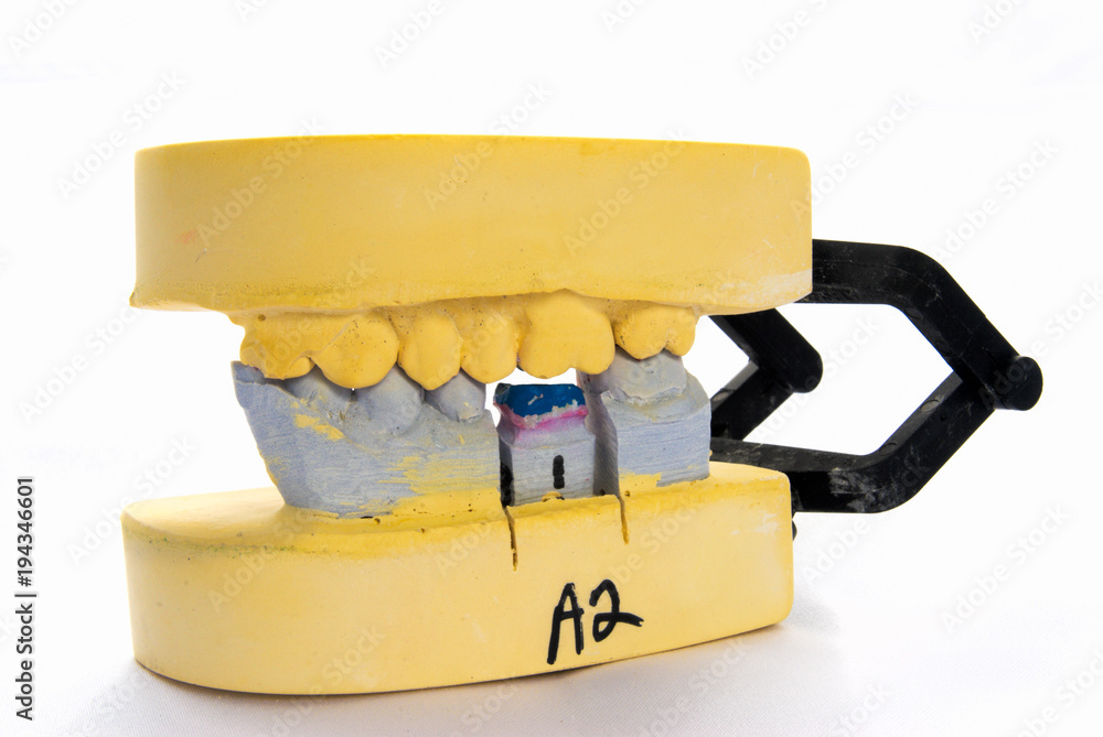 Photo & Art Print Plaster Dental Mold with Missing Tooth | EuroPosters