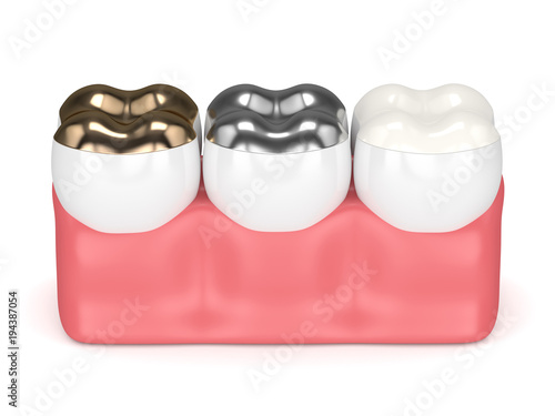 3d render of teeth with gold, amalgam and composite onlay dental filling over wh Canvas-taulu
