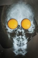 Skull,CHOLESTEROL,   Head X-ray With Two Fresh Eggs,breakfast,diet ,Halloween